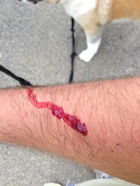 Josh has a bloody arm after dog attack