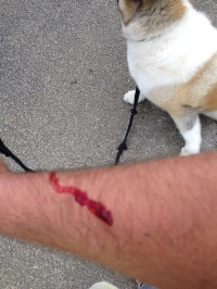 Josh arm after dog attack