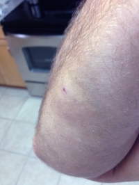josh-bruise-after-dog-attack