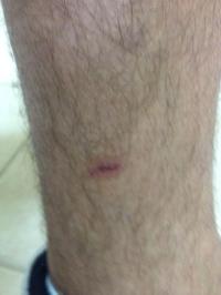 josh-leg-after-dog-attack